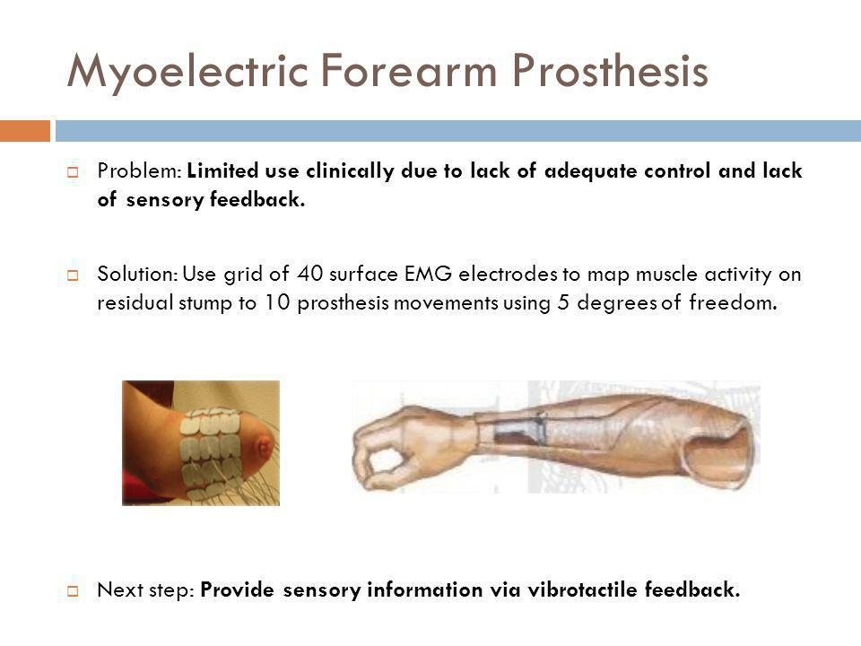 Myoelectric Forearm Prosthesis Problem: Limited use clinically due to lack of adequate control and lack of sensory feedback.