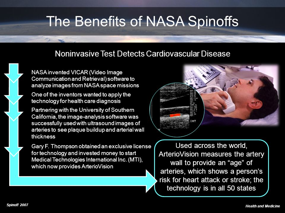 NASA invented VICAR (Video Image Communication and Retrieval) software to analyze images from NASA space missions One of the inventors wanted to apply