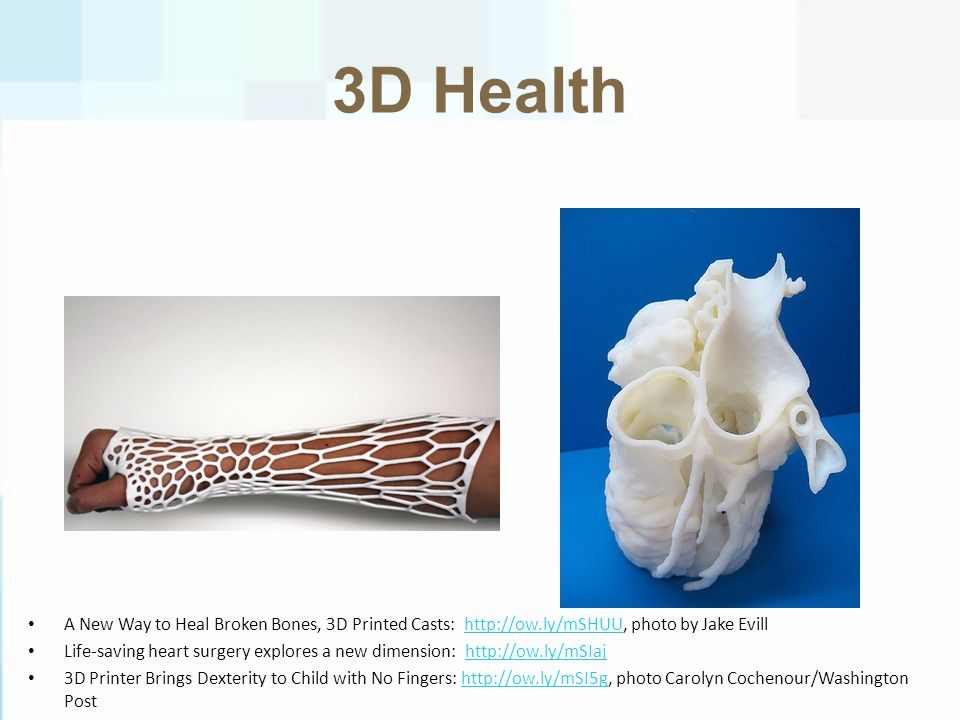 3D Health A New Way to Heal Broken Bones, 3D Printed Casts: http://ow.ly/mSHUU, photo by Jake Evillhttp://ow.ly/mSHUU Life-saving heart surgery explores a new dimension: http://ow.ly/mSIajhttp://ow.ly/mSIaj 3D Printer Brings Dexterity to Child with No Fingers: http://ow.ly/mSI5g, photo Carolyn Cochenour/Washington Posthttp://ow.ly/mSI5g