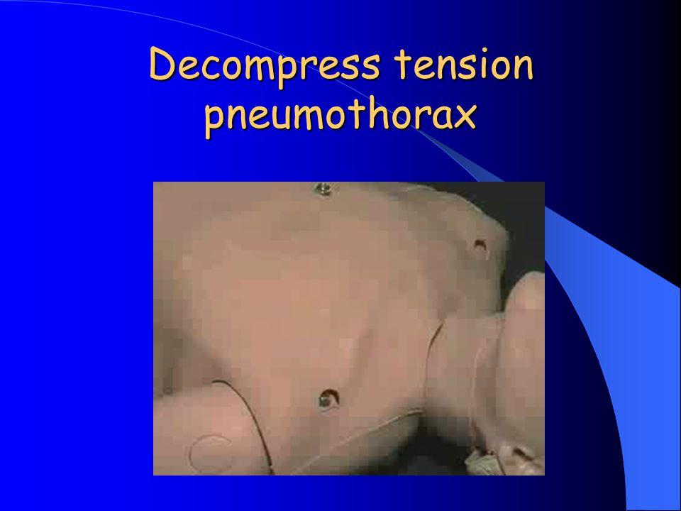 Decompress tension pneumothorax