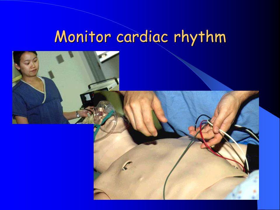 Monitor cardiac rhythm
