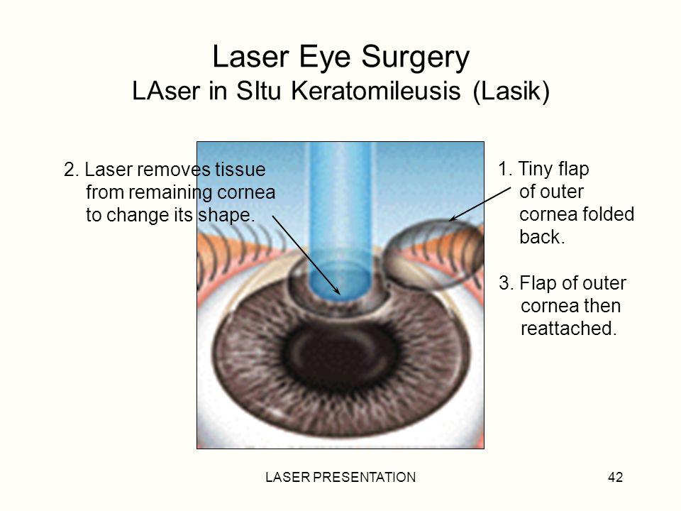 LASER PRESENTATION42 Laser Eye Surgery LAser in SItu Keratomileusis (Lasik) 1.