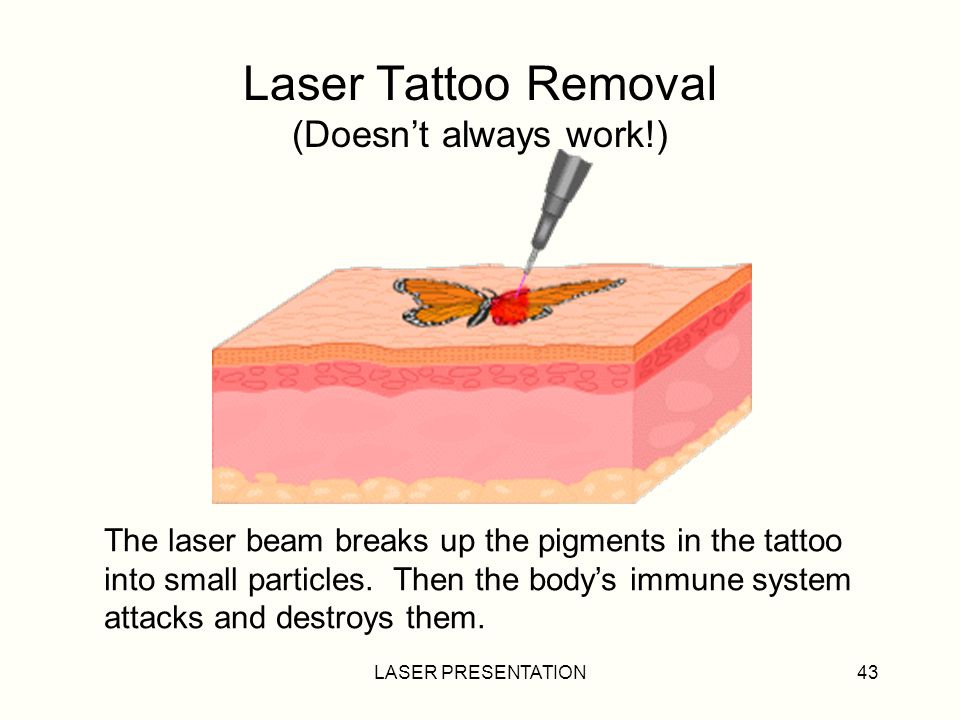 LASER PRESENTATION43 Laser Tattoo Removal (Doesnt always work!) The laser beam breaks up the pigments in the tattoo into small particles.