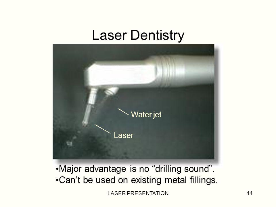 LASER PRESENTATION44 Laser Dentistry Laser Water jet Major advantage is no drilling sound.