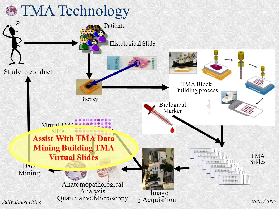 Julie Bourbeillon 26/07/2005 TMA Technology Histological Slide Biopsy 2 Study to conduct Virtual TMA Silde Data Mining Image Acquisition Biological Marker TMA Sildes Patients TMA Block Building process Anatomopathological Analysis Quantitative Microscopy Assist With TMA Data Mining Building TMA Virtual Slides