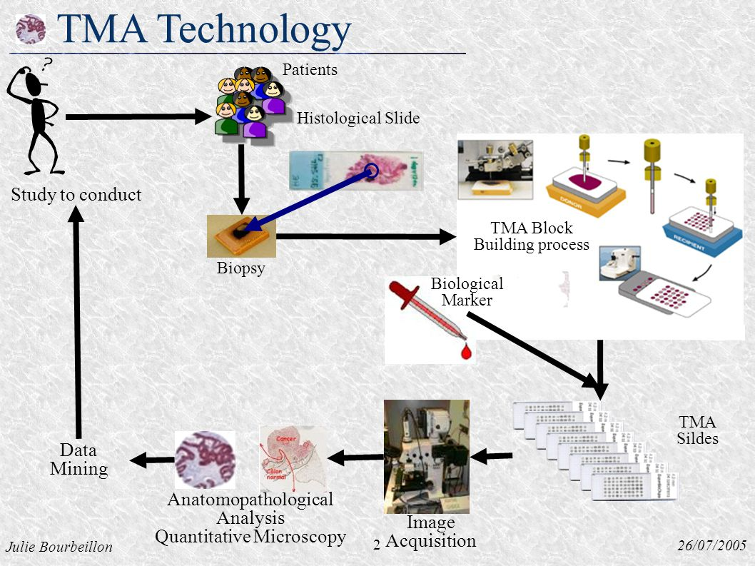 Julie Bourbeillon 26/07/2005 TMA Technology Histological Slide Biopsy 2 Study to conduct Data Mining Image Acquisition Biological Marker TMA Sildes Patients TMA Block Building process Anatomopathological Analysis Quantitative Microscopy