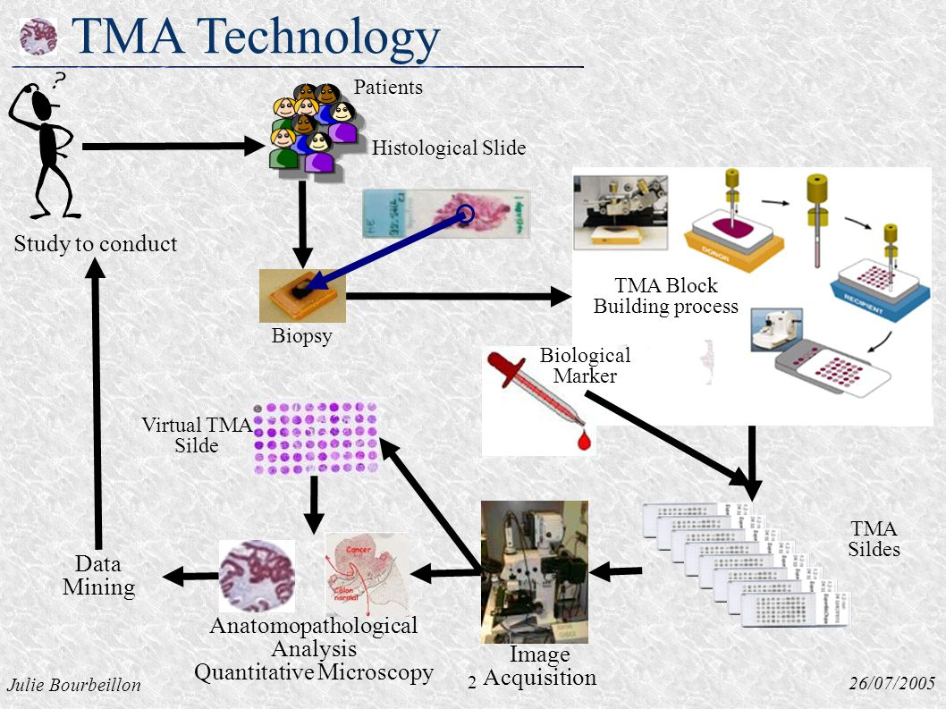 Julie Bourbeillon 26/07/2005 TMA Technology Histological Slide Biopsy 2 Study to conduct Virtual TMA Silde Data Mining Image Acquisition Biological Marker TMA Sildes Patients TMA Block Building process Anatomopathological Analysis Quantitative Microscopy