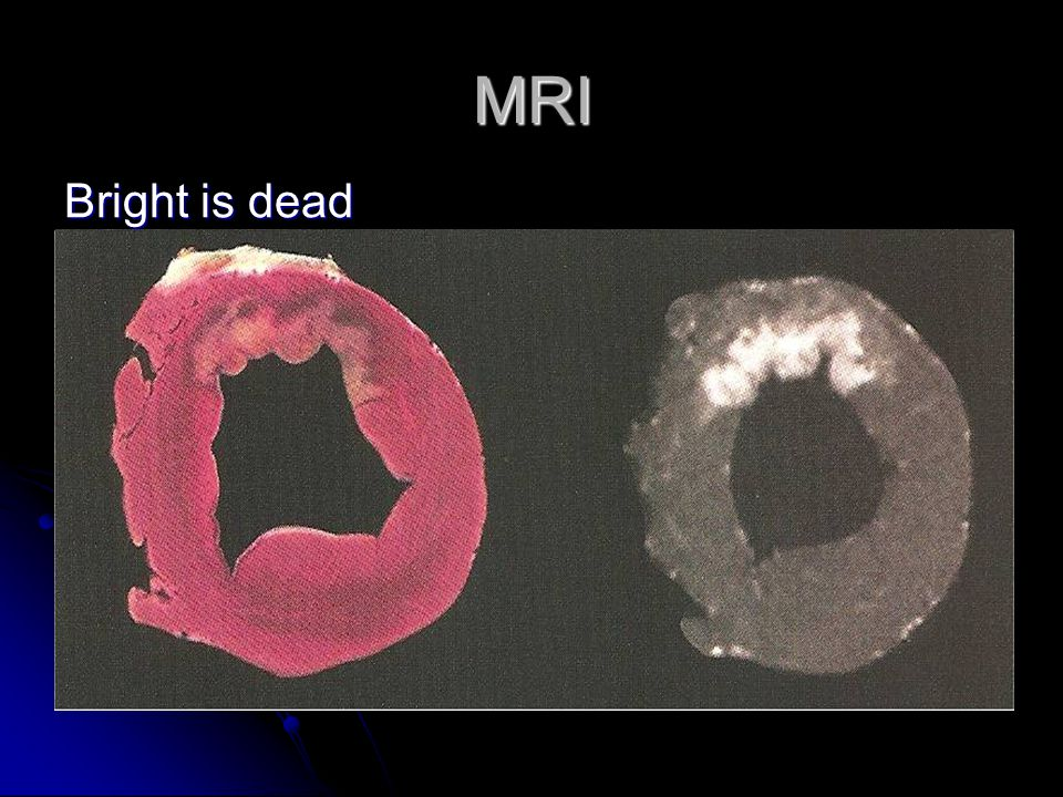 MRI Bright is dead