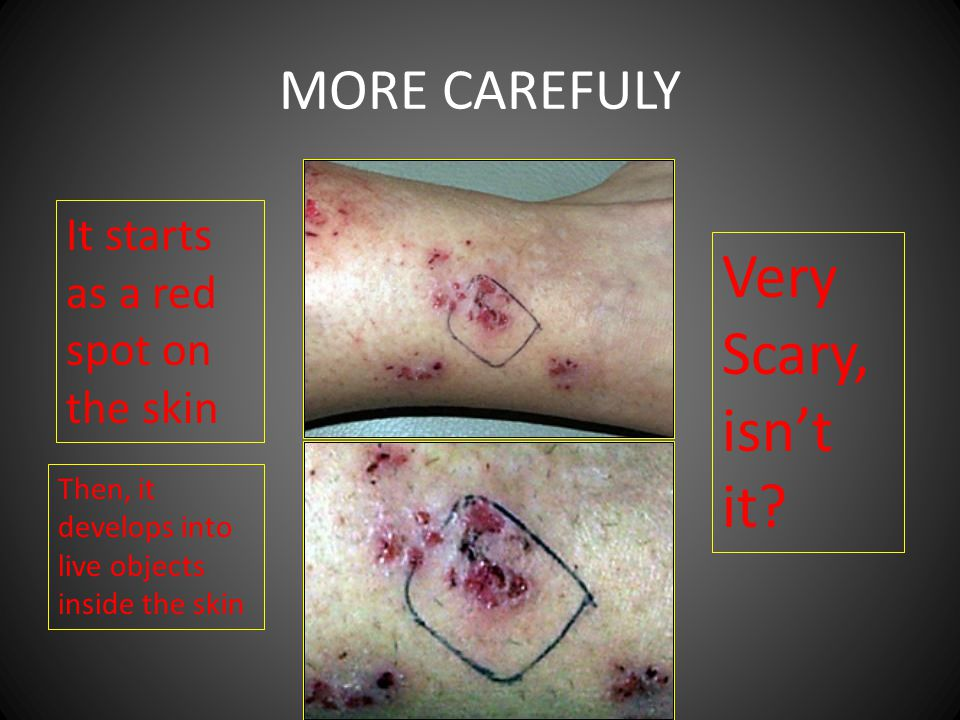 MORE CAREFULY It starts as a red spot on the skin Then, it develops into live objects inside the skin Very Scary, isnt it