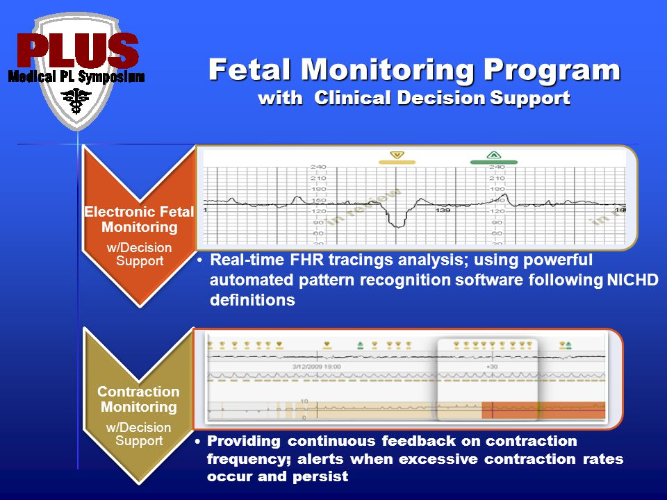Fetal Monitoring Program with Clinical Decision Support Real-time FHR tracings analysis; using powerful automated pattern recognition software following NICHD definitions Providing continuous feedback on contraction frequency; alerts when excessive contraction rates occur and persist