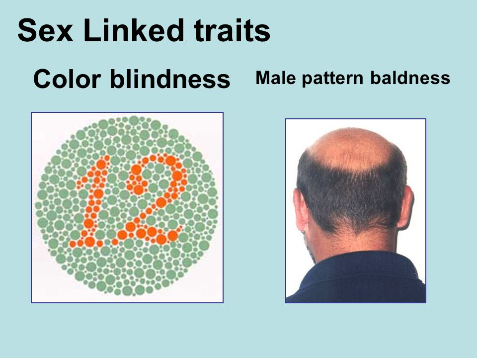 Color blindness Sex Linked traits Male pattern baldness