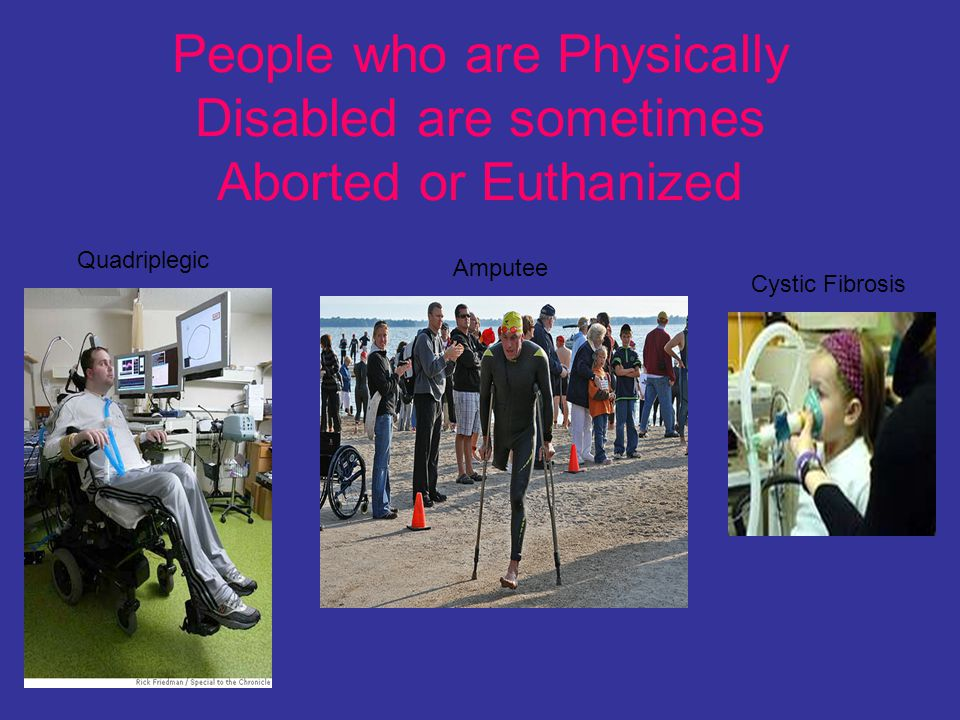 People who are Physically Disabled are sometimes Aborted or Euthanized Cystic Fibrosis Quadriplegic Amputee
