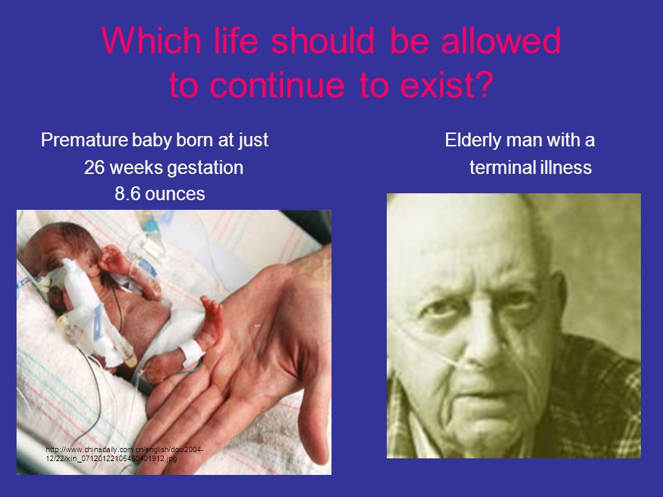 Which life should be allowed to continue to exist? Premature baby born at just Elderly man with a 26 weeks gestation terminal illness 8.6 ounces http: