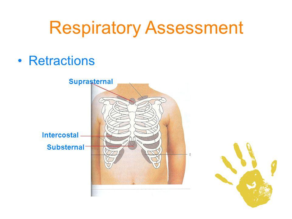 Respiratory Assessment Retractions Suprasternal Substernal Intercostal