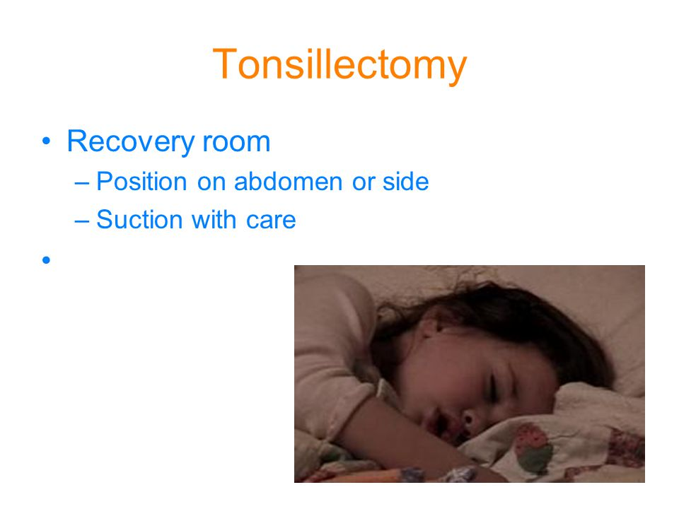 Tonsillectomy Recovery room –Position on abdomen or side –Suction with care