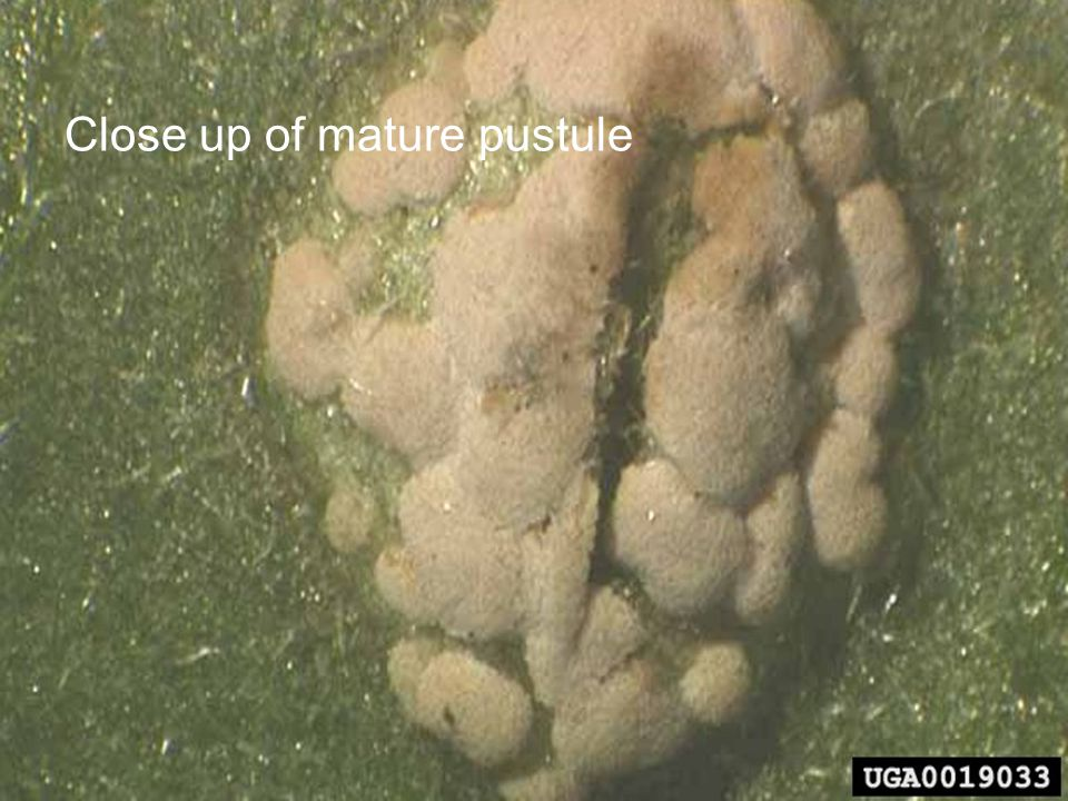 Close up of mature pustule