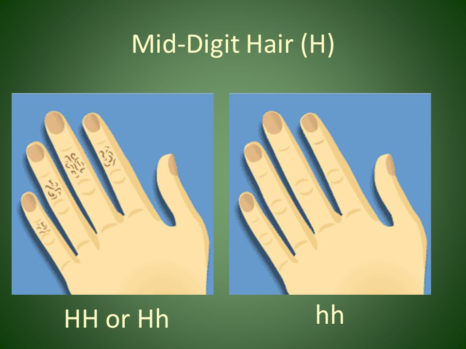 Mid-Digit Hair (H) HH or Hh hh