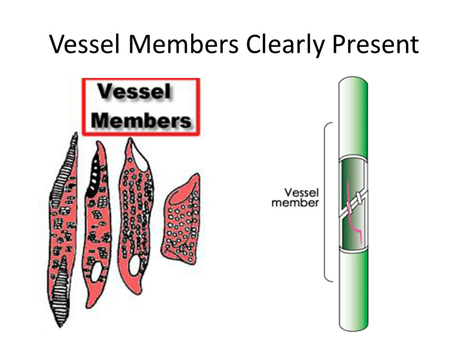 Vessel Members Clearly Present