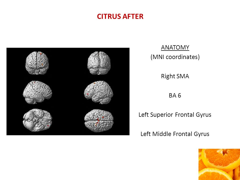CITRUS AFTER ANATOMY (MNI coordinates) Right SMA BA 6 Left Superior Frontal Gyrus Left Middle Frontal Gyrus