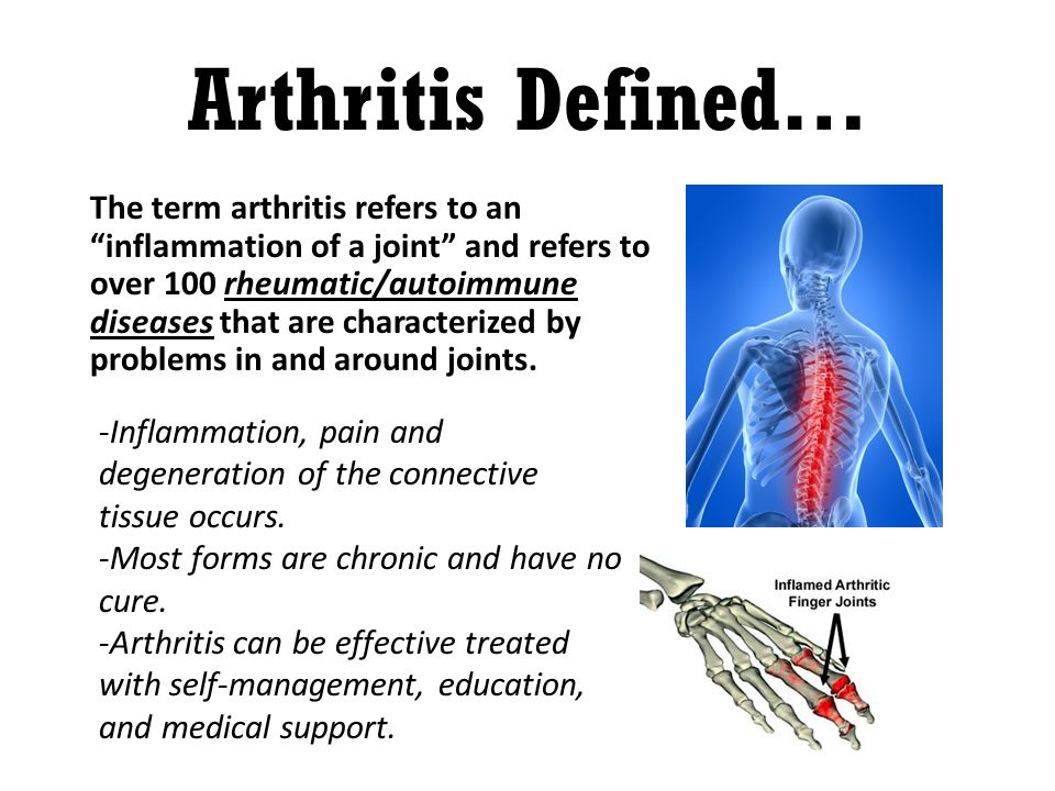 Arthritis Defined… The term arthritis refers to an inflammation of a joint and refers to over 100 rheumatic/autoimmune diseases that are characterized by problems in and around joints.