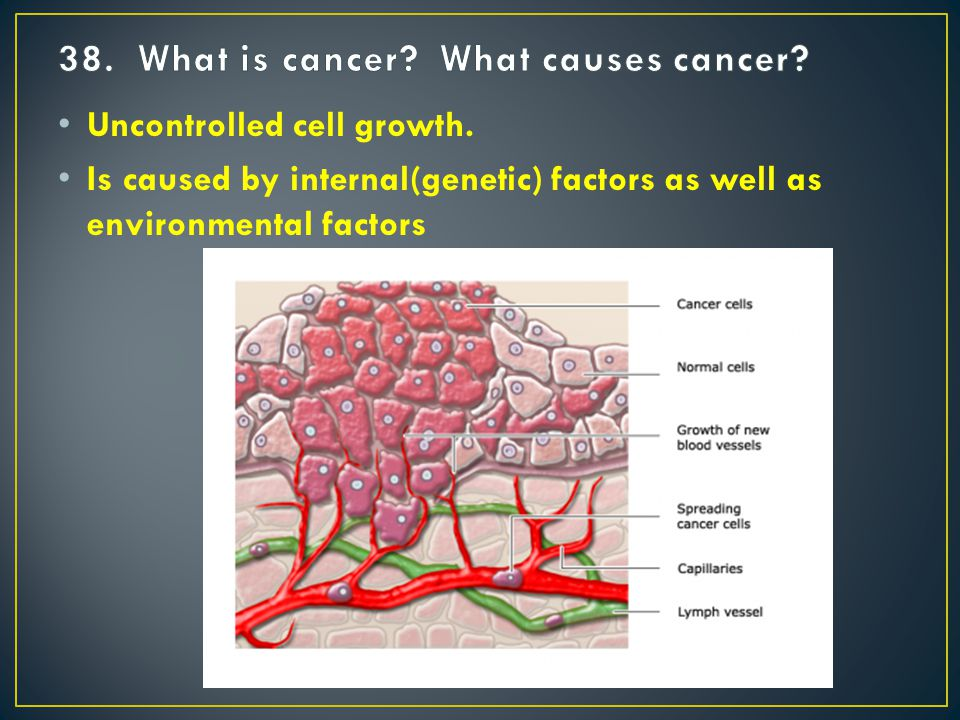 Uncontrolled cell growth. Is caused by internal(genetic) factors as well as environmental factors