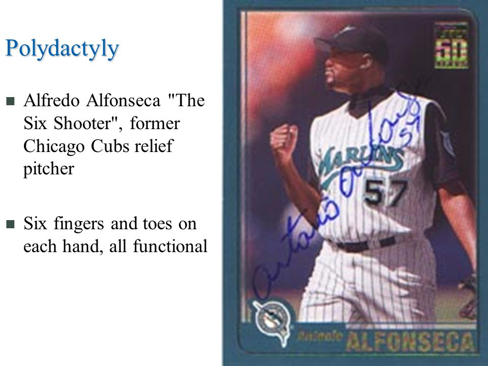 Polydactyly Alfredo Alfonseca The Six Shooter , former Chicago Cubs relief pitcher Six fingers and toes on each hand, all functional