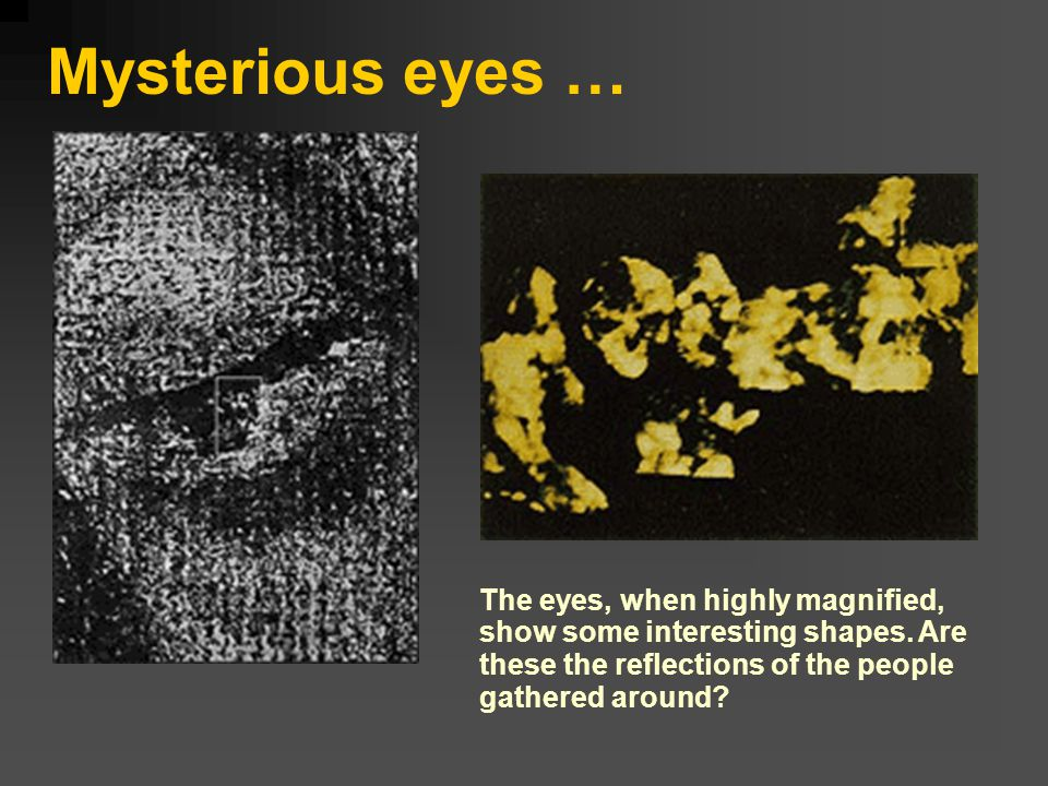 Mysterious eyes … The eyes, when highly magnified, show some interesting shapes.