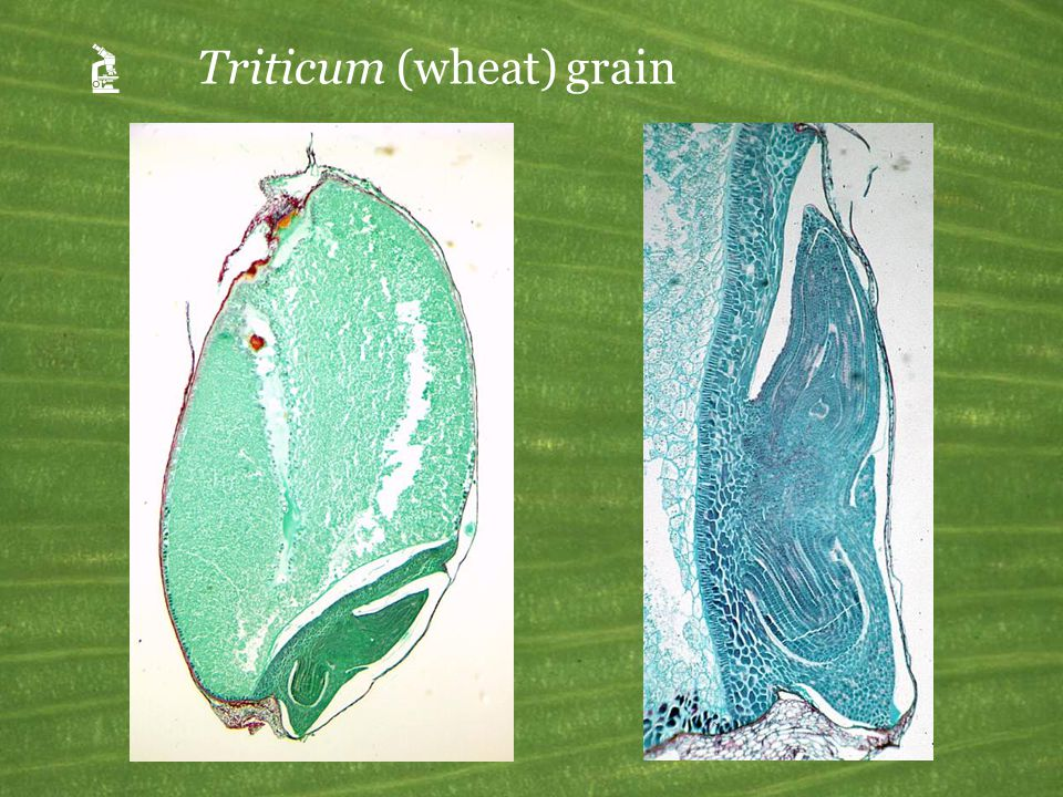 Triticum (wheat) grain