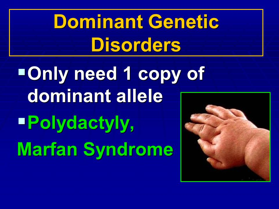 Dominant Genetic Disorders Only need 1 copy of dominant allele Only need 1 copy of dominant allele Polydactyly, Polydactyly, Marfan Syndrome