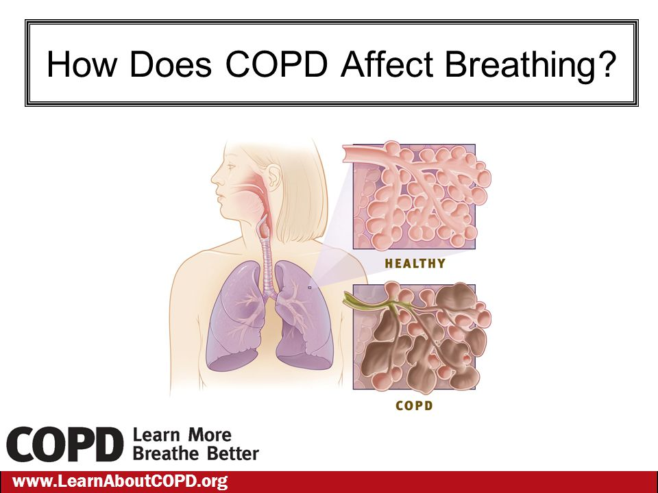 www.LearnAboutCOPD.org How Does COPD Affect Breathing?