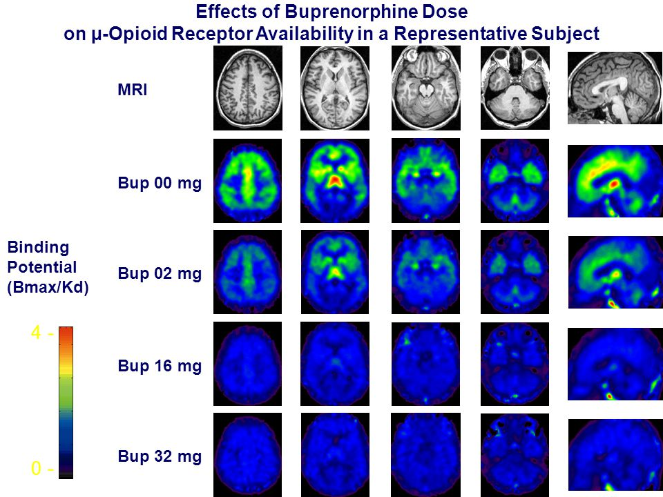 Bup 00 mg Bup 02 mg Bup 16 mg Bup 32 mg 0 - 4 - MRI Binding Potential (Bmax/Kd) Effects of Buprenorphine Dose on µ-Opioid Receptor Availability in a Representative Subject