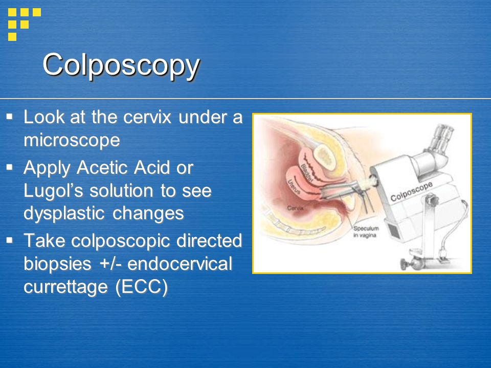 ColposcopyColposcopy Look at the cervix under a microscope Apply Acetic Acid or Lugols solution to see dysplastic changes Take colposcopic directed bi