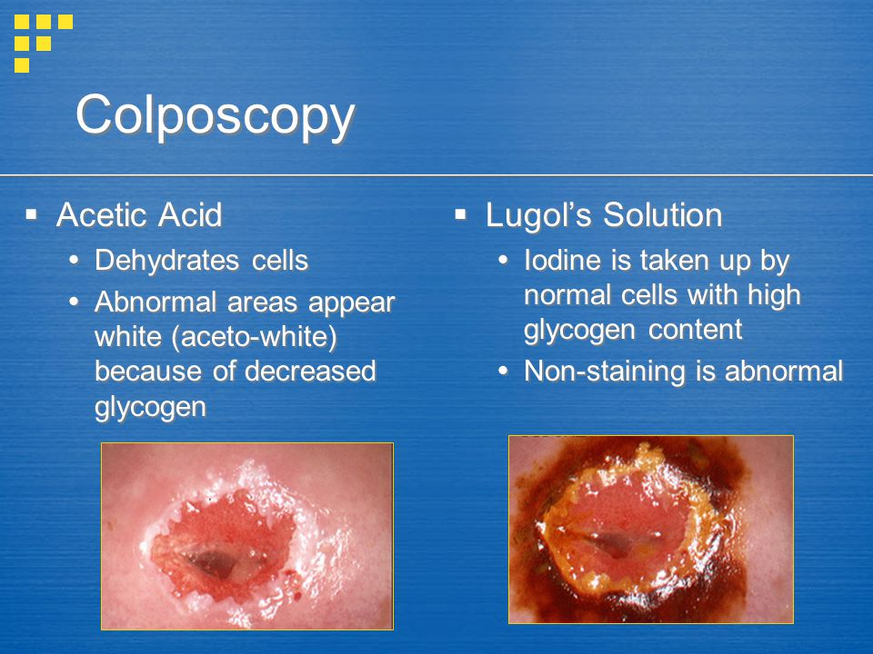 Colposcopy Acetic Acid Dehydrates cells Abnormal areas appear white (aceto-white) because of decreased glycogen Acetic Acid Dehydrates cells Abnormal