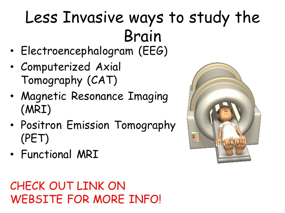 Less Invasive ways to study the Brain Electroencephalogram (EEG) Computerized Axial Tomography (CAT) Magnetic Resonance Imaging (MRI) Positron Emissio