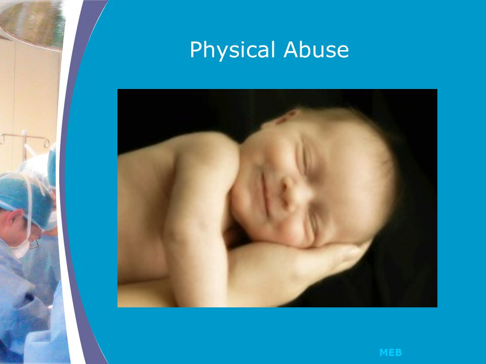 MEB How We Gather a History Out of the presence of verbal children victims Carefully document the history We do not assume that every child who presents, is abused; we probe with open ended questions and are aware of what is normal sexual exploration for children