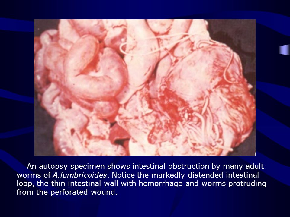 An autopsy specimen shows intestinal obstruction by many adult worms of A.lumbricoides. Notice the markedly distended intestinal loop, the thin intest