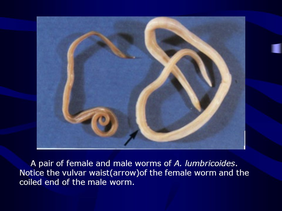 A pair of female and male worms of A. lumbricoides. Notice the vulvar waist(arrow)of the female worm and the coiled end of the male worm.