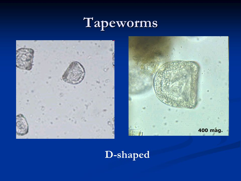 Tapeworms D-shaped