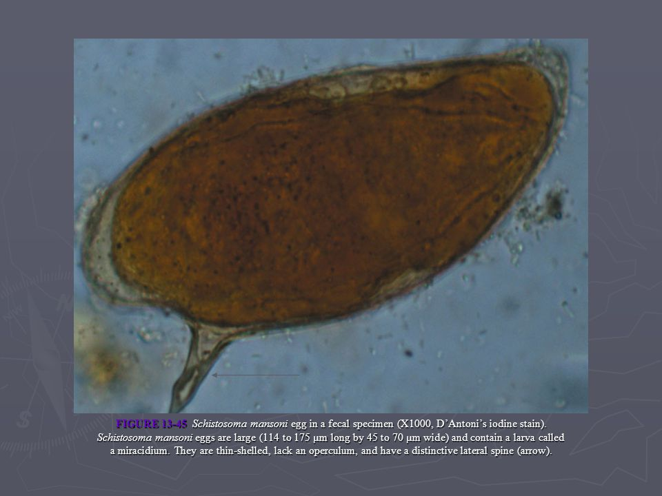 FIGURE 13-45 Schistosoma mansoni egg in a fecal specimen (X1000, DAntonis iodine stain). Schistosoma mansoni eggs are large (114 to 175 µm long by 45