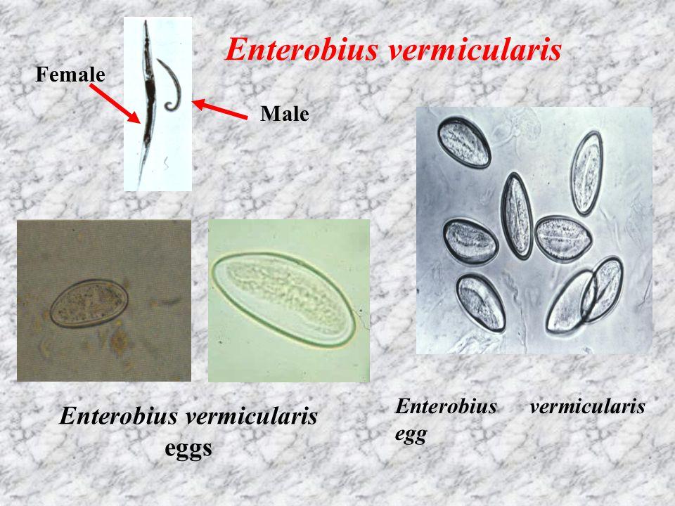 Female Male Enterobius vermicularis Enterobius vermicularis eggs Enterobius vermicularis egg
