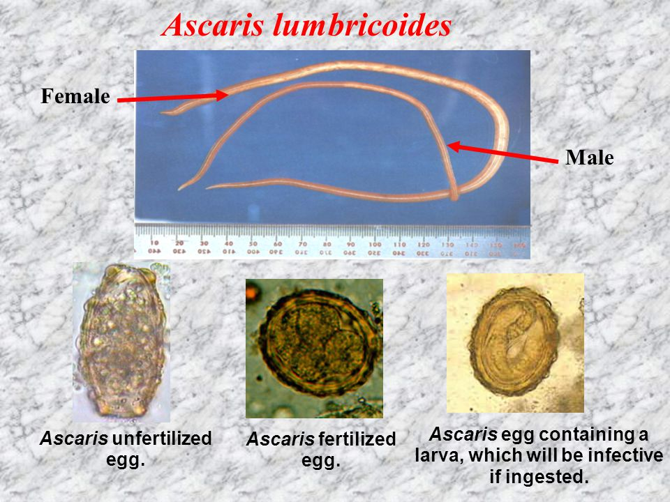 Enterobius vermicularisAscaris lumbricoides Name Pinworm, seat worm Ascariasis, round worm Size Female 8-13, male 2-5 mmFemale 20-35, male 15-30 cm Disease Enterobiasis (oxyuriasis)Ascariasis Geographica l distribution Worldwide, most common in temperate regions and in crowded places Worldwide; high prevalence in tropical and subtropical areas with inadequate sanitation, and where human feces are used as fertilizer Infective stage Embryonated egg Mode of infection Ingestion; or autoinfection via nails scratching the perianus Ingestion of eggs in food contaminated with human feces Infection site Large intestineSmall intestine, lung