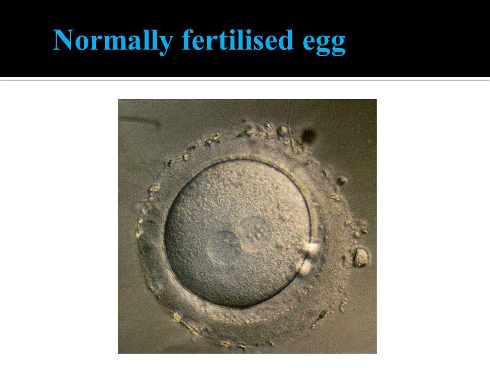 Normally fertilised egg