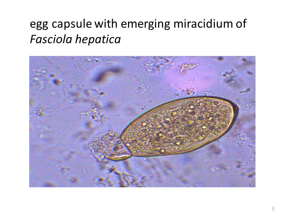 5 egg capsule with emerging miracidium of Fasciola hepatica
