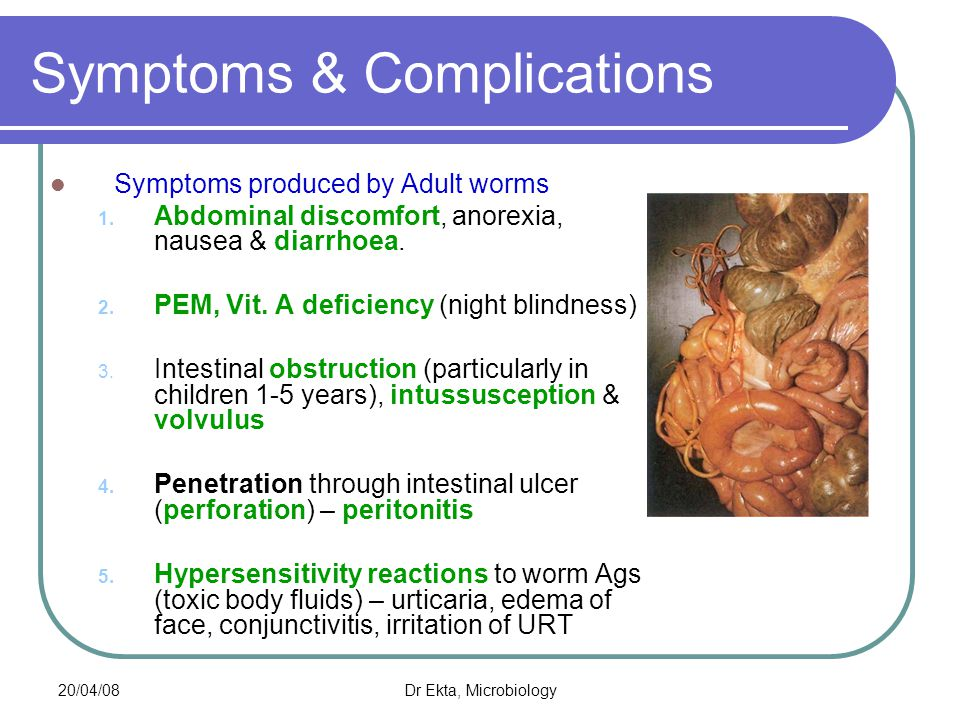 20/04/08Dr Ekta, Microbiology Pathogenicity & clinical features Symptoms produced by Adult worms 6.