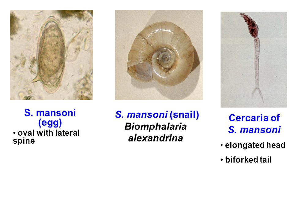 S. mansoni (snail) Biomphalaria alexandrina Cercaria of S. mansoni elongated head biforked tail S. mansoni (egg) oval with lateral spine