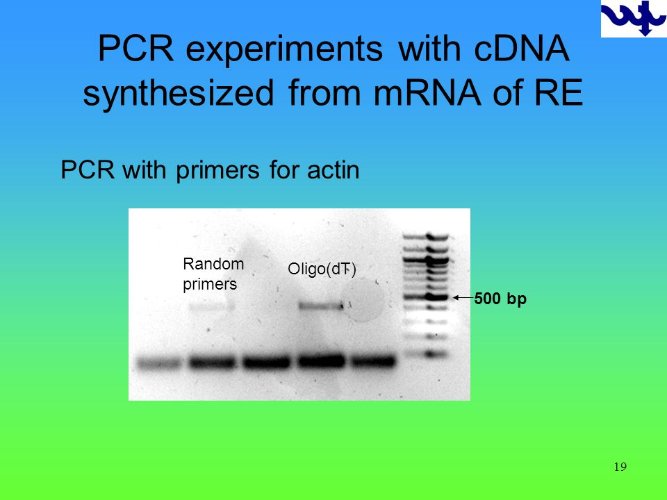 19 500 bp Random primers Oligo(dT) PCR experiments with cDNA synthesized from mRNA of RE PCR with primers for actin