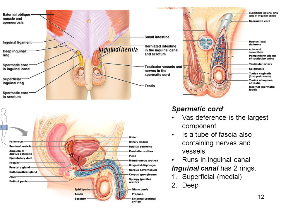 12 Spermatic cord: Vas deference is the largest component Is a tube of fascia also containing nerves and vessels Runs in inguinal canal Inguinal canal