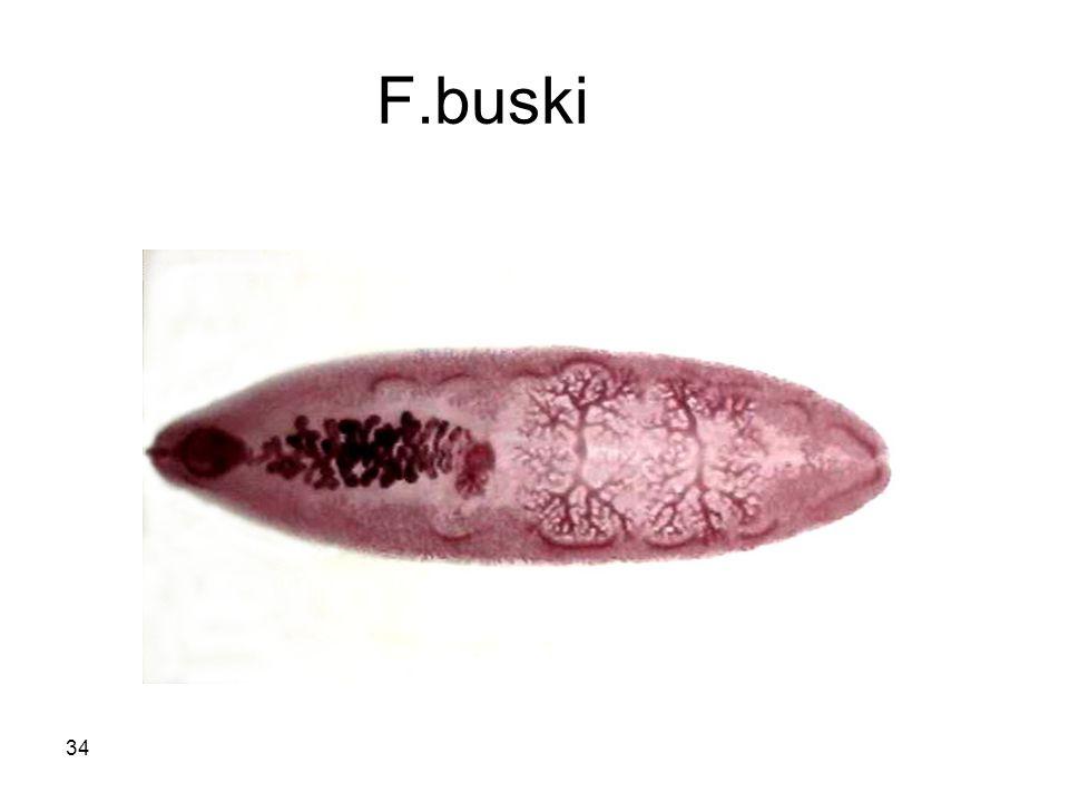 34 F.buski