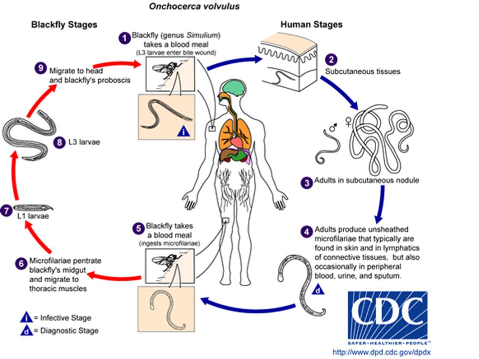 Life Cycle of Onchocerca volvulus: