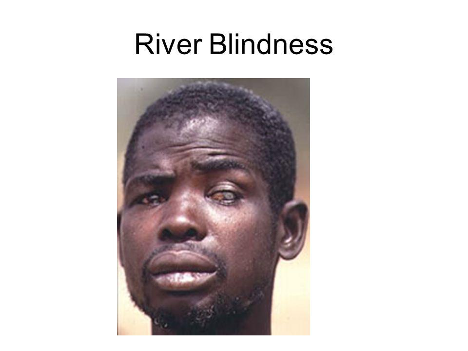 River Blindness